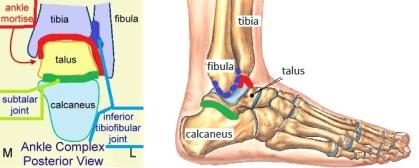 Ankle pic.jpg
